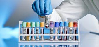 Jakie usługi oferują nam nowoczesne laboratoria?